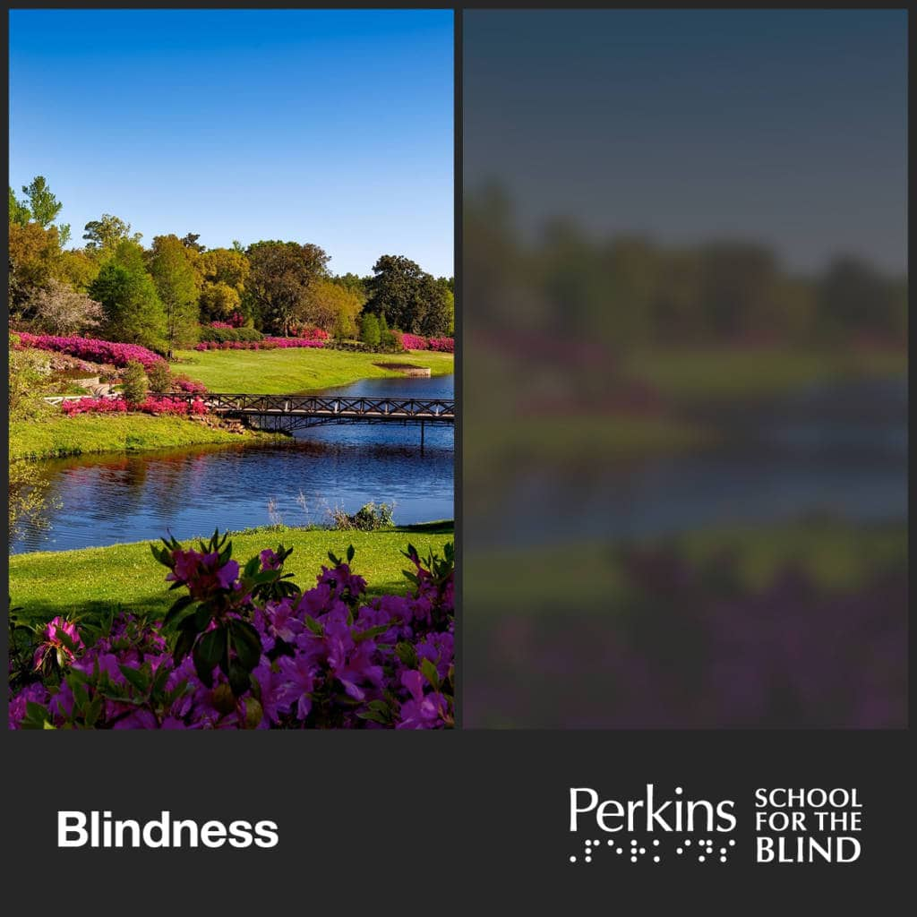 two images of a river but right image is blurry and dark - Blindness