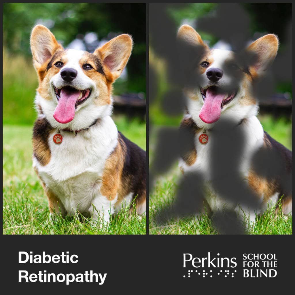 two images of a dog smiling but right imagehas black clouds covering it - Diabetic Retinopathy